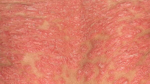 erythrodermic-psoriasis-not-just-itchy-skin-rm-1440x810